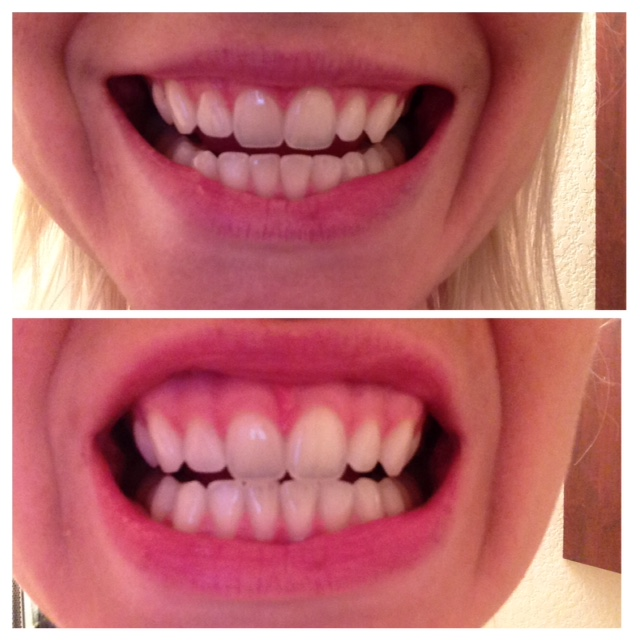whitening teeth with charcoal